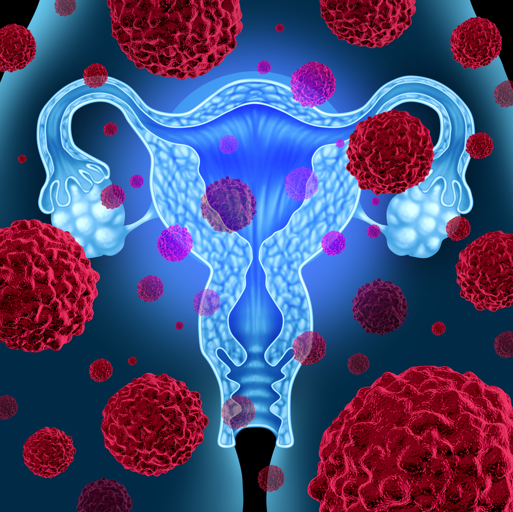 Novel Protein Involved in Cervical Cancer Progression